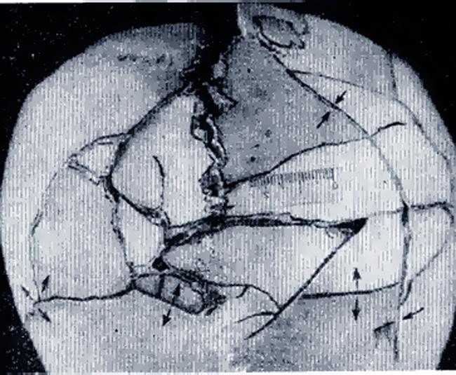 Перелом Оскольчатый фото