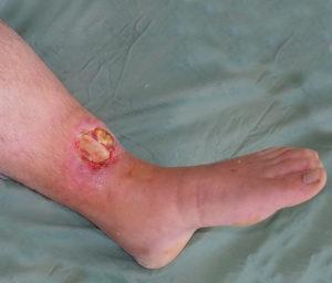 открытый перелом ноги