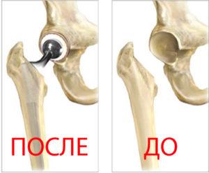 операция после перелома бедра