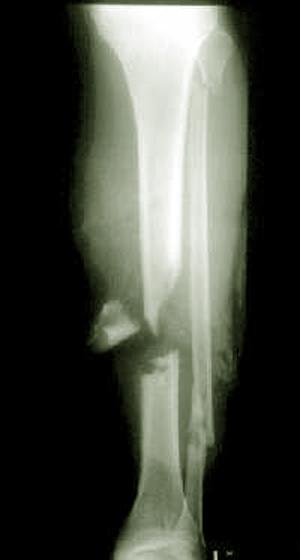 Перелом берцовой кости - сроки его лечения и возможные последствия