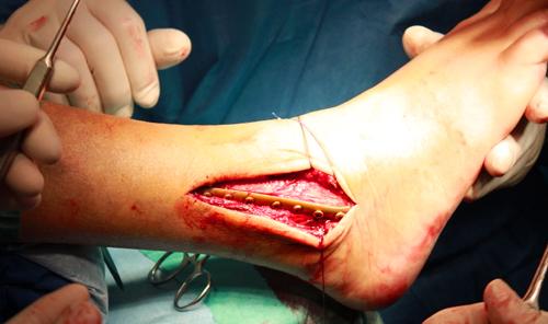 Перелом голеностопного сустава лечение артралгия коленного сустава - это