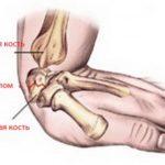Лечение перелома кисти и как делать реабилитационный массаж самостоятельно