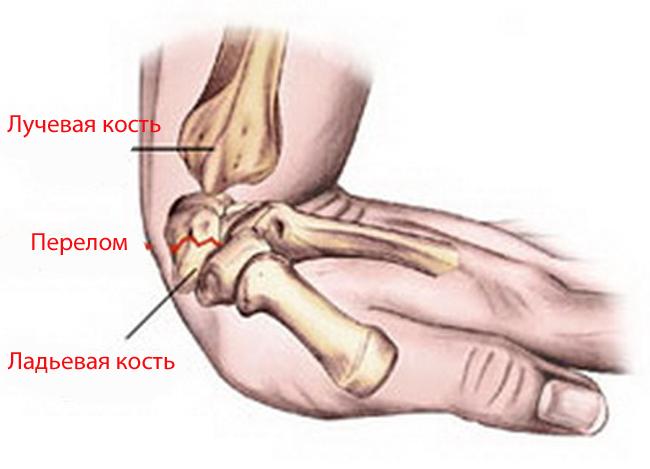 Перелом запястья руки: симптомы, лечение, реабилитациree -->  <!-- wp:heading --> <h2><span id=