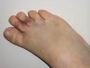 Перелом безымянного пальца на ноге