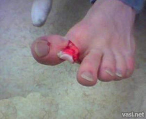 открытый перелом пальца на ноге