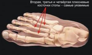 перелом пальцев стопы