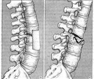 лечение перелома позвоночника