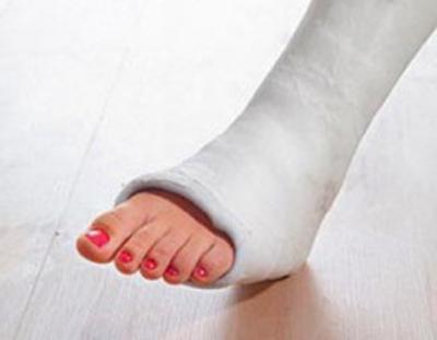 лечение перелома пятки