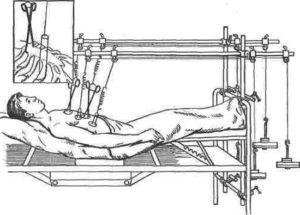 лечение переломов рёбер