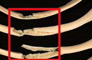 признаки перелома ребра
