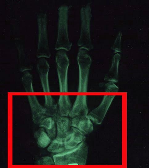 Перелом лучевой кости со смещением фото