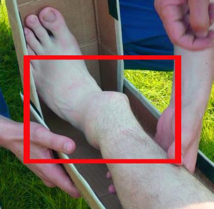Перелом ноги - симптомы, методы лечения и реабилитация