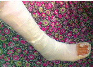 гипс при переломе ноги