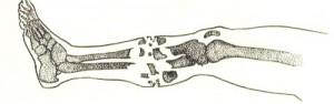 признаки перелома ноги