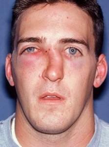 последствия при переломе носа