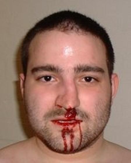 фото сломанного носа