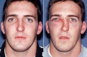 как меняется лицо при переломе носа
