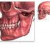 Перелом челюсти – симптомы и последствия