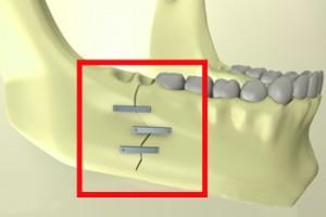 Лечение перелома нижней челюсти