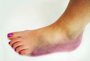 Симптомы перелома ноги