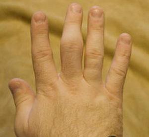 Симптомы перелома пальца