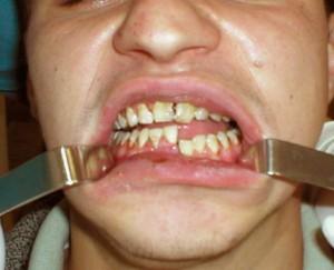 перелом нижней челюсти
