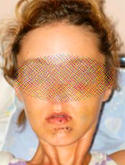 Перелом челюсти: симптоматика и последствия травм лица