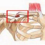 Перелом ключицы — лечение и возможные последствия