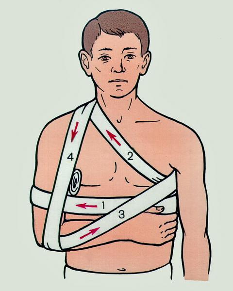 Оказание первой помощи при переломе ключицы