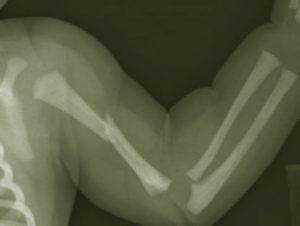 перелом плечевой кости