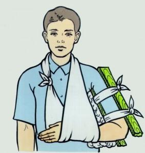 лечение перелома плечевой кости
