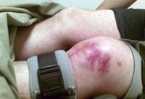 Виды переломов коленного сустава