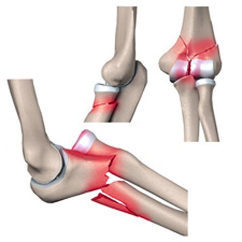 Перелом локтевого сустава лечебная гимнастика боль в связках локтевого сустава