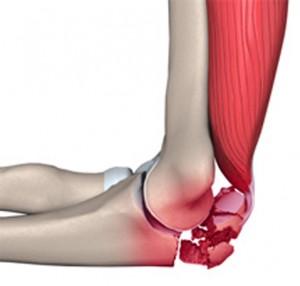 Симптомы перелома локтевого сустава