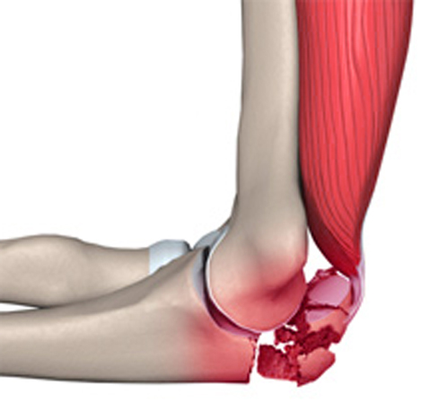 Как разработать локтевой сустав после перелома видео трещина локтевого сустава у детей