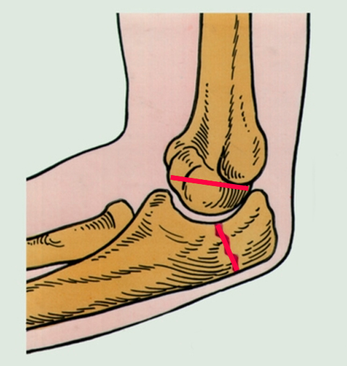 Перелом локтевого сустава без смещения у ребенка хруст суставов у детей до года