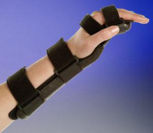 Лечение повреждений лучезапястного сустава