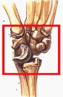 Признаки перелома лучезапятсноо сустава