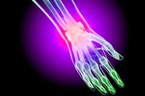 Перелом лучезапястного сустава: лечение, реабилитация и последствия