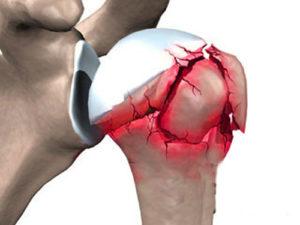Причины перелома сустава плеча