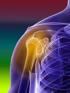 Виды переломов плечевого сустава