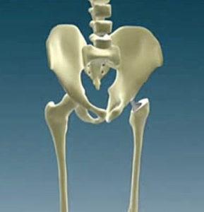 Симптомы перелома тазобедренного сустава