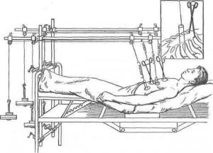 Лечение перелома грудины