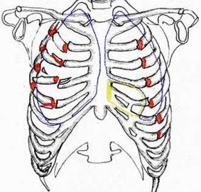 Перелом грудной клетки и его симптомы