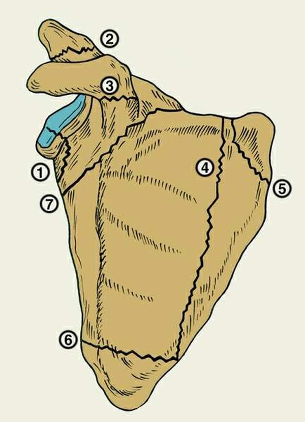 Перелом лопатки - лечение и первая помощь