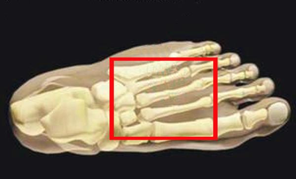 Отрывной перелом плюсневой кости