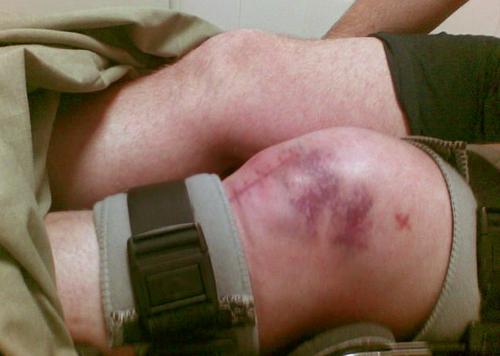 Оскольчатый перелом подколенного сустава эпифизарная дисплазия тахобедренных суставов