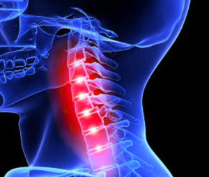 Перелом шеи и его последствия
