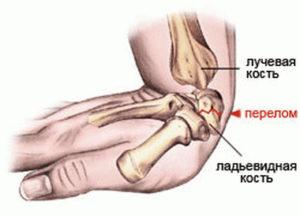 Механизм перелома ладьевидной кости руки