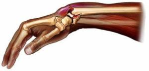 Диагностика и лечение перелома ладьевидной кости
